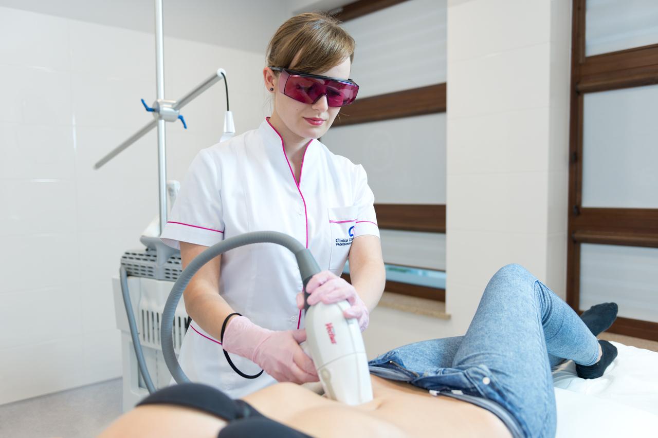 laser na cellulit