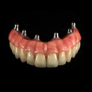 protezy zębowe Gdańsk